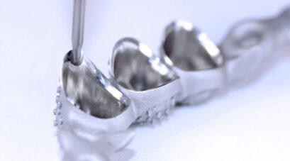 Möglicher Prozess für TempoPlant Fertigungszelle - Kugelkopffräser während der Fertigung einer patientenspezifischen Metall-Zahnleiste