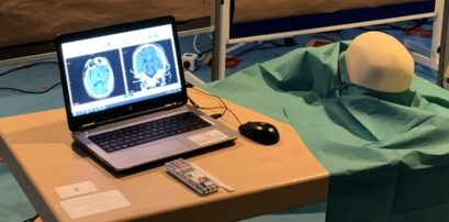 Beispielübungsplatz. CT Daten des Patienten (links) mit maßstabsgetreuem 3D Modell (rechts). Zur Markierung der Schnitte und Bohrungen werden Stifte verwendet.   Quelle: Bundeswehrkrankenhaus Westerstede